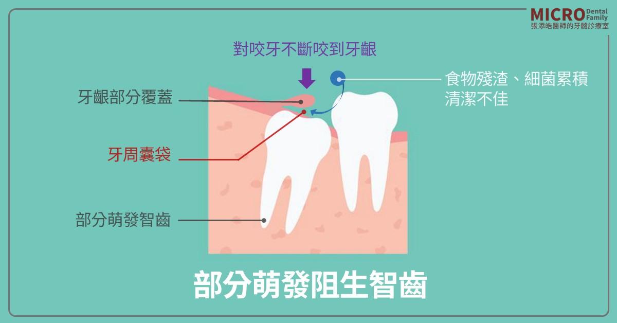 牙冠周圍炎