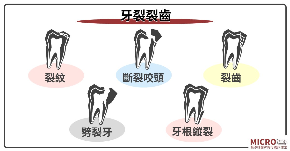 牙裂裂牙裂齒