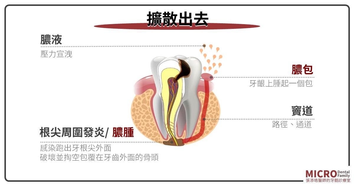 膿包感染擴散