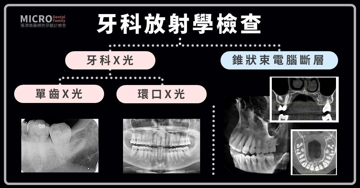 根管治療抽神經檢查牙科X光電腦斷層