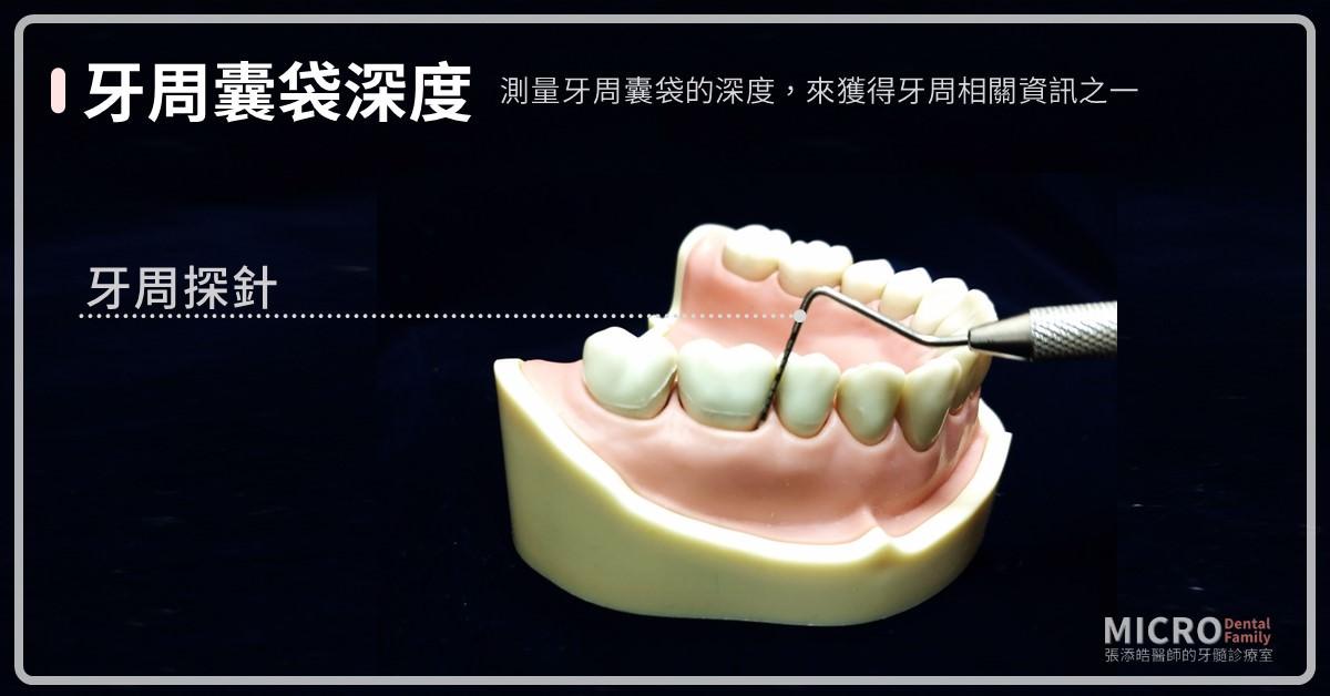 根管治療抽神經檢查牙周