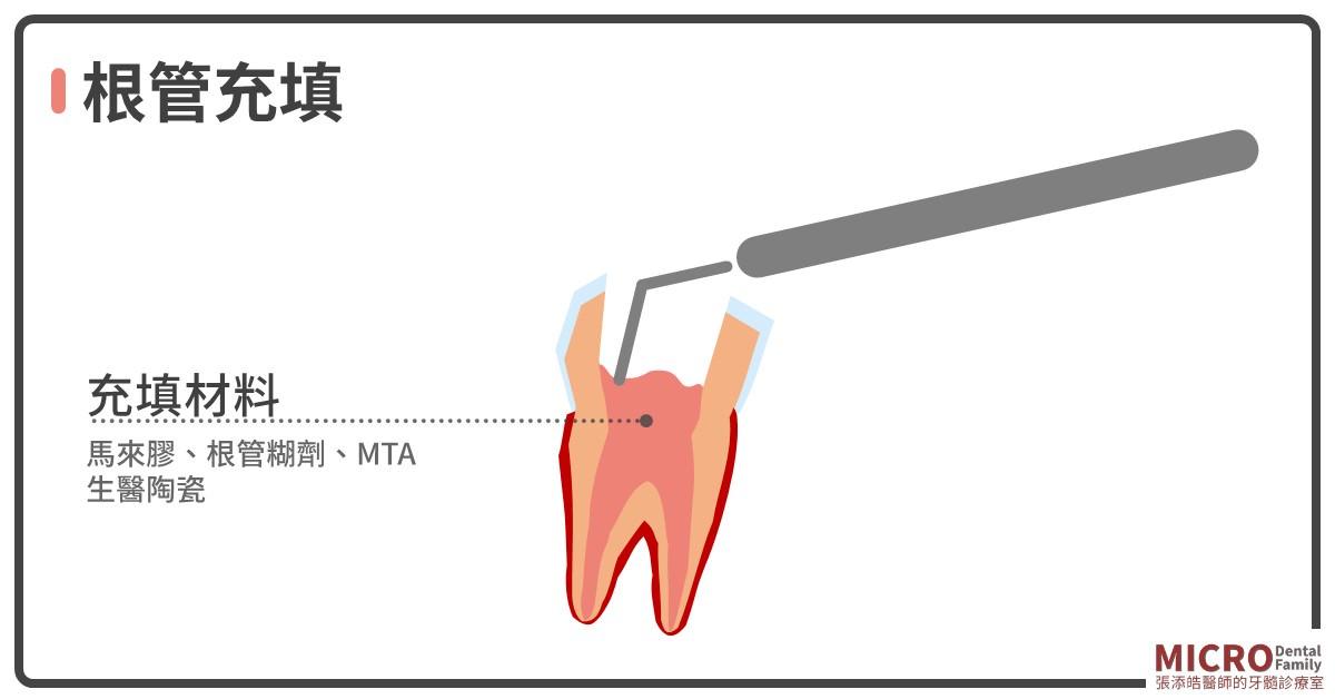 根管治療八步驟清潔根管充填
