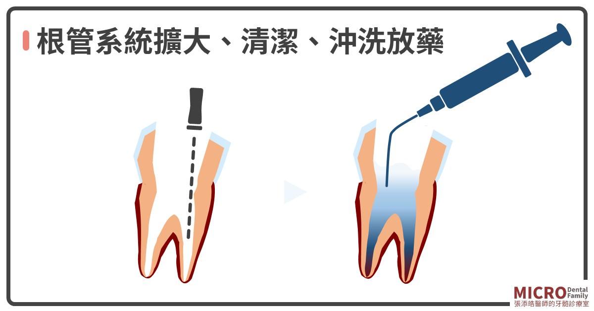 根管治療八步驟清潔擴大沖洗放藥
