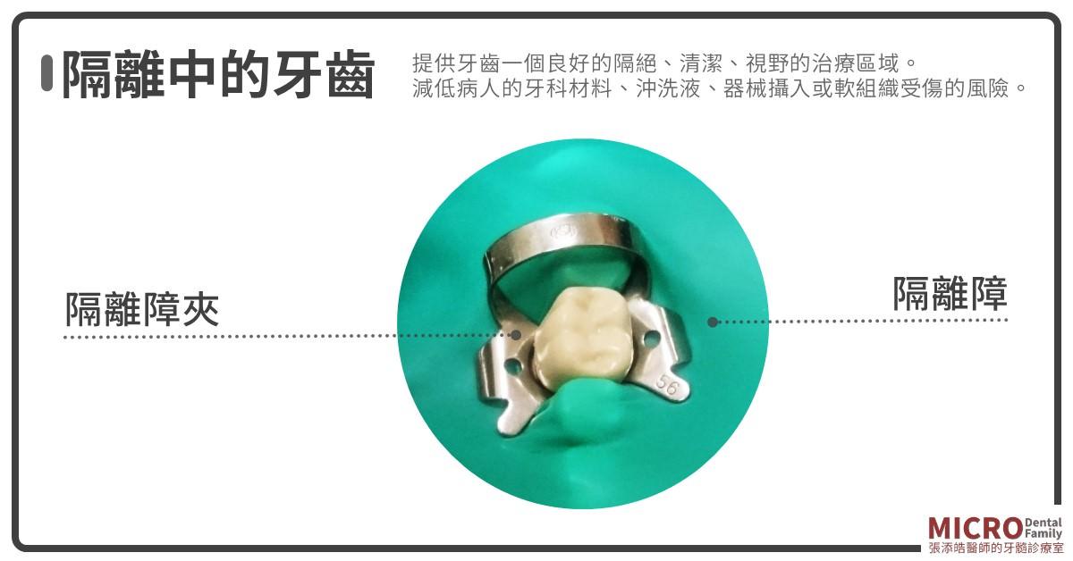 根管治療八步驟橡皮障
