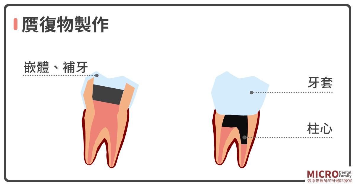 根管治療八步驟清潔牙套