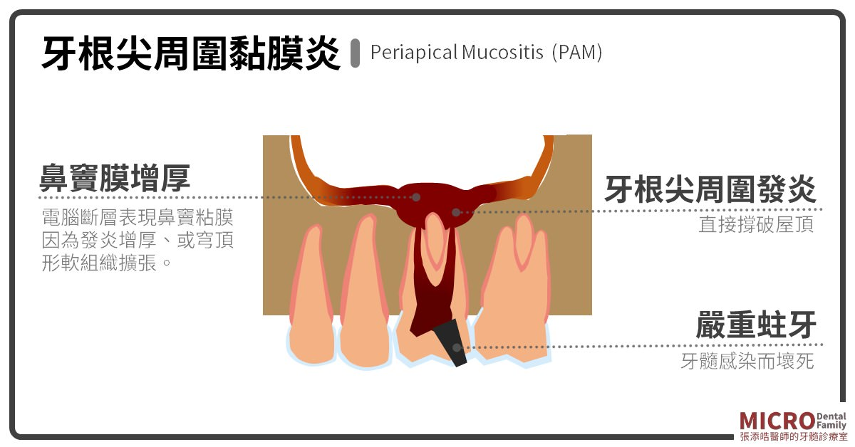 牙根尖周圍黏膜炎Periapical Mucositis (PAM)