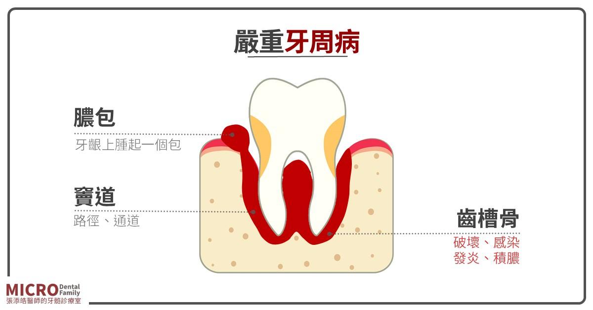 牙齦膿包 g
