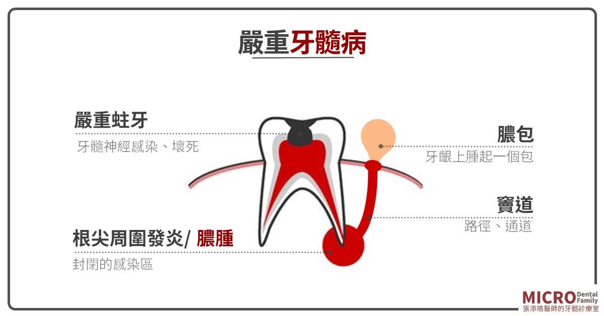牙齦膿包 f