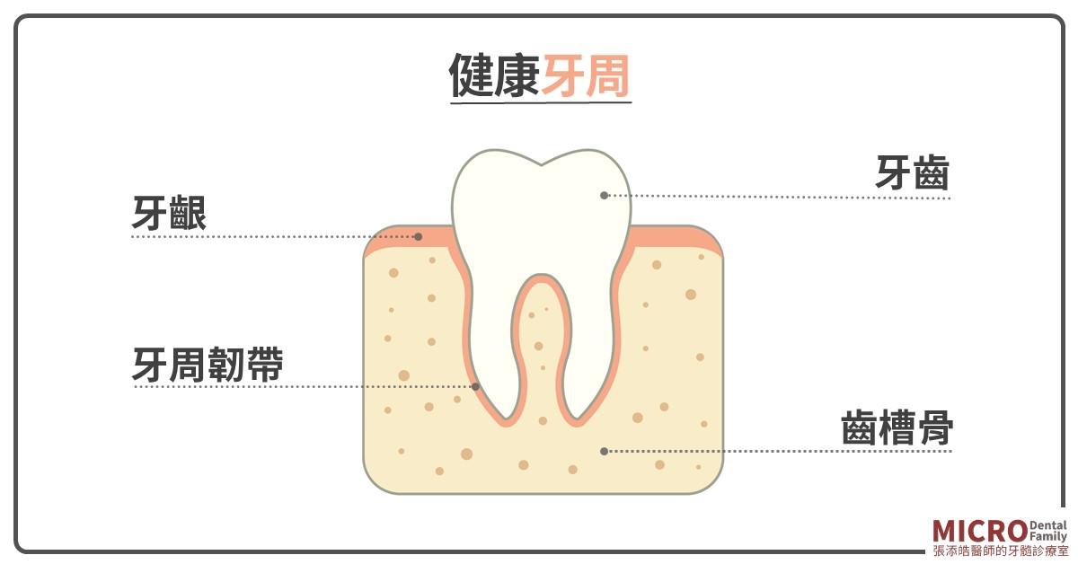 牙齦膿包 e