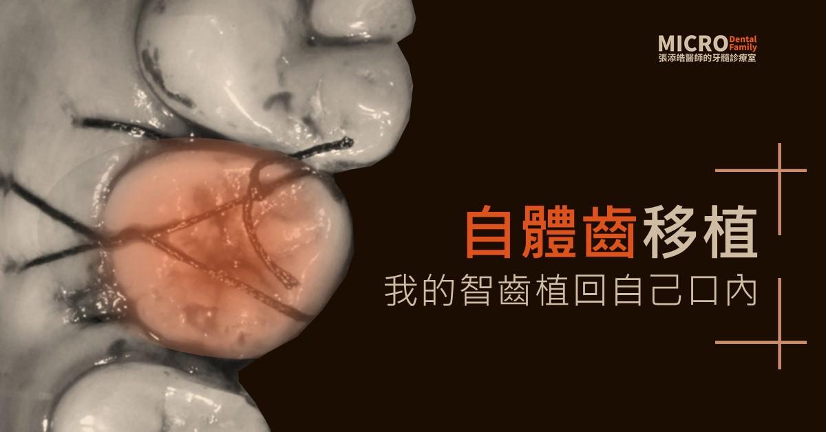 自體齒移植