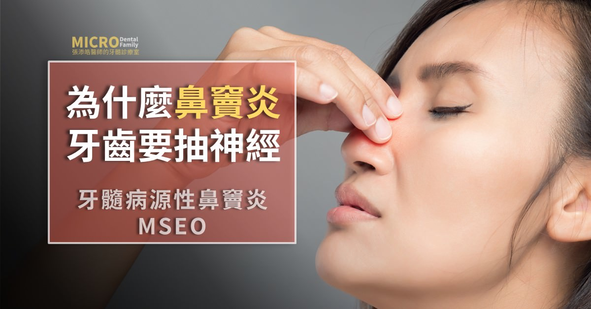 牙髓鼻竇炎MESO