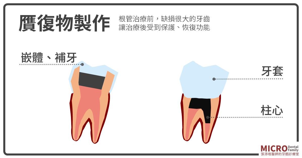 根管治療牙套
