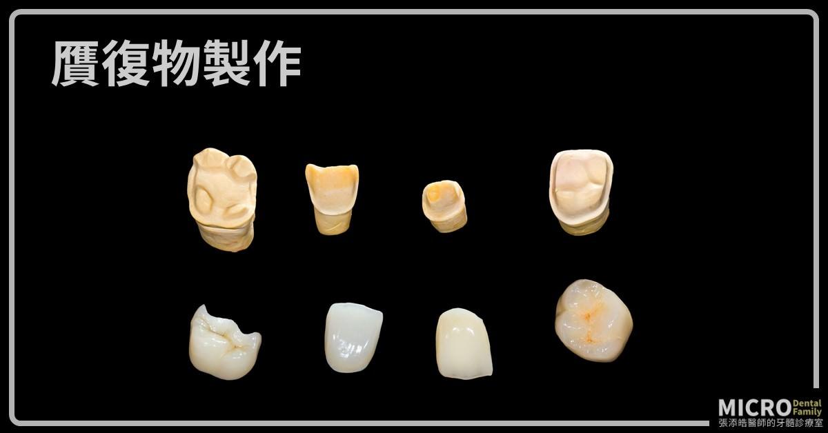 牙套,嵌體