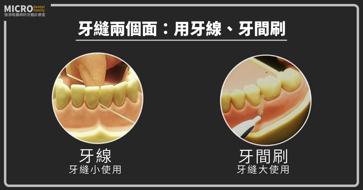 牙縫兩個面