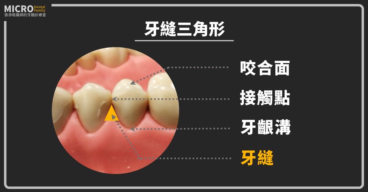牙縫三角形