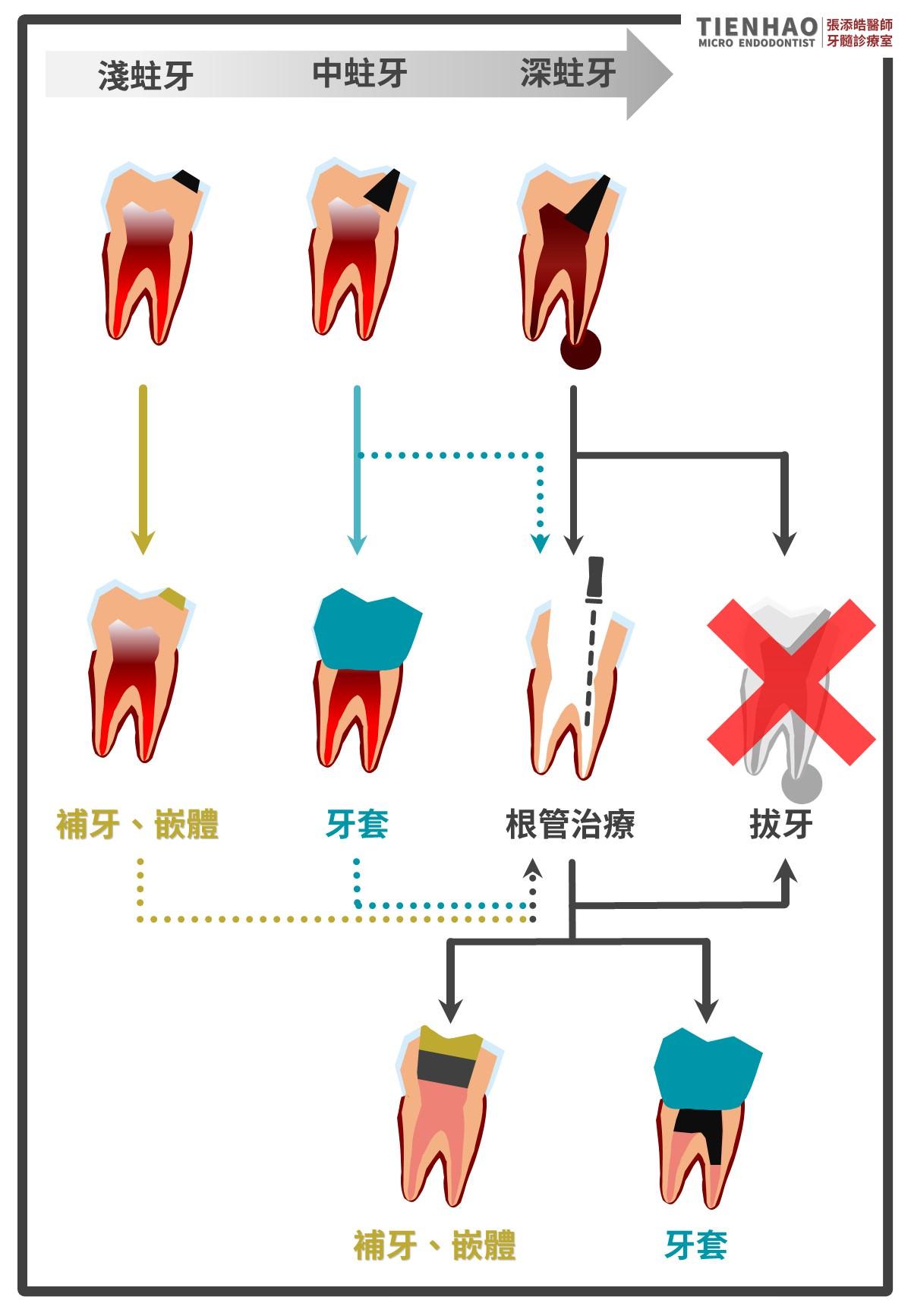 蛀牙到底要不要裝牙套