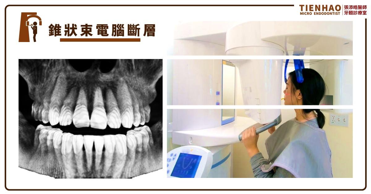 牙科放射線