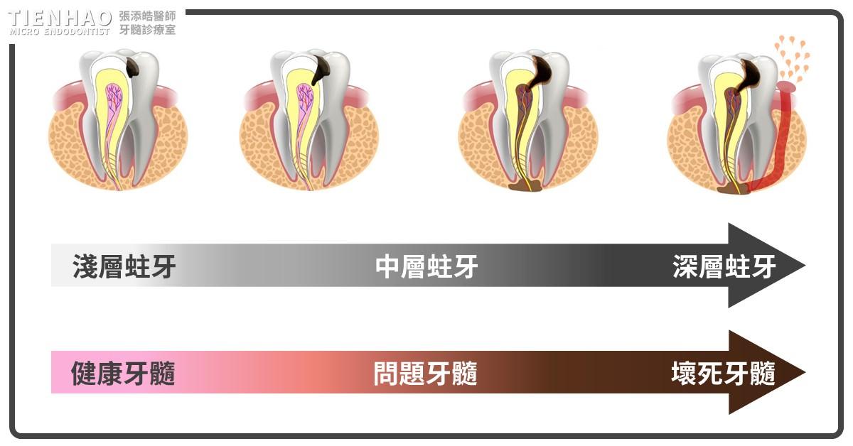 牙髓壞死一定會長膿包嗎