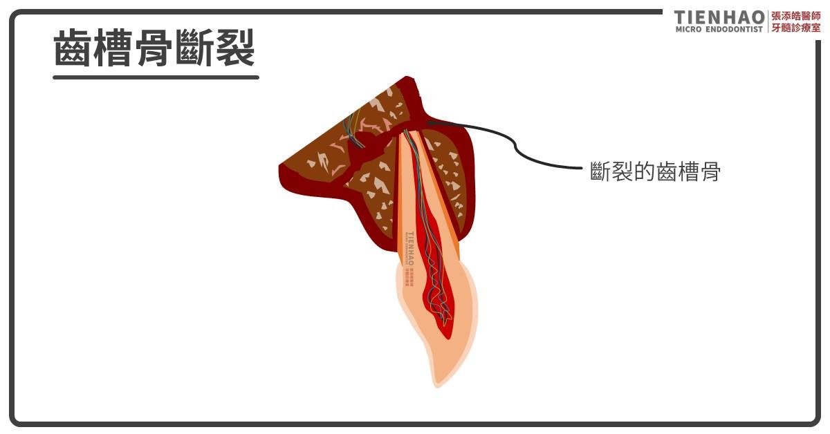 齒槽骨斷裂