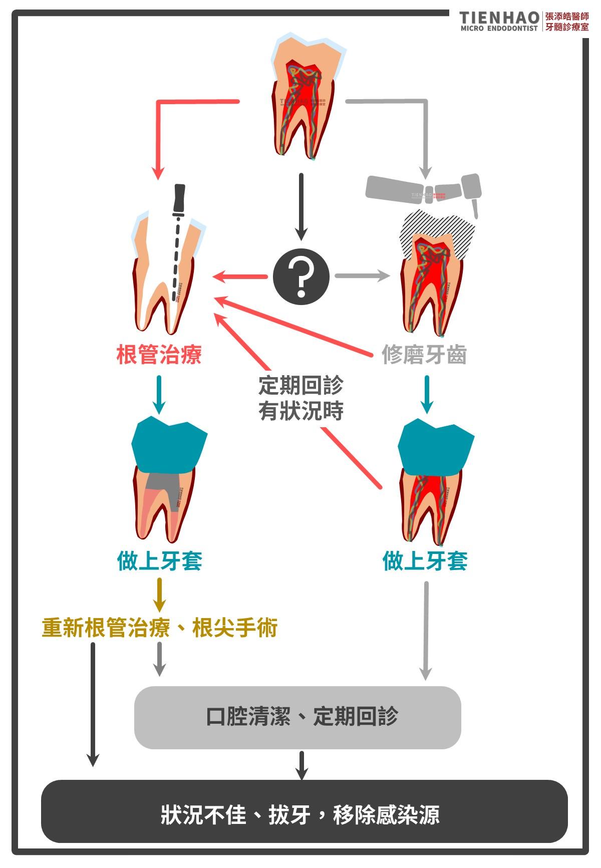 牙套要抽神經嗎