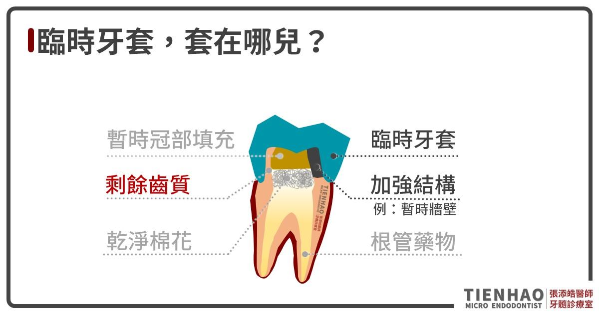 臨時牙套掉了該怎麼辦呀