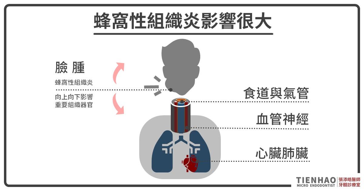 牙齒蜂窩性組織炎