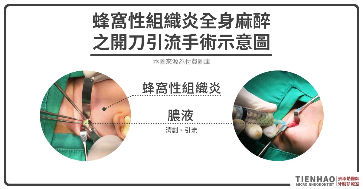 蜂窩性組織炎手術