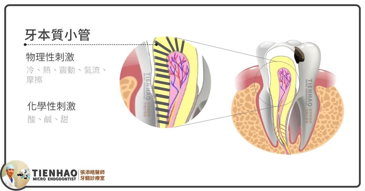 牙本質小管