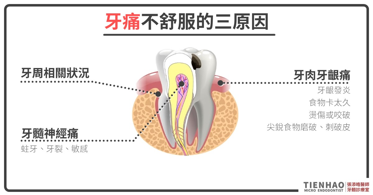牙痛、牙裂、牙肉腫、膿胞