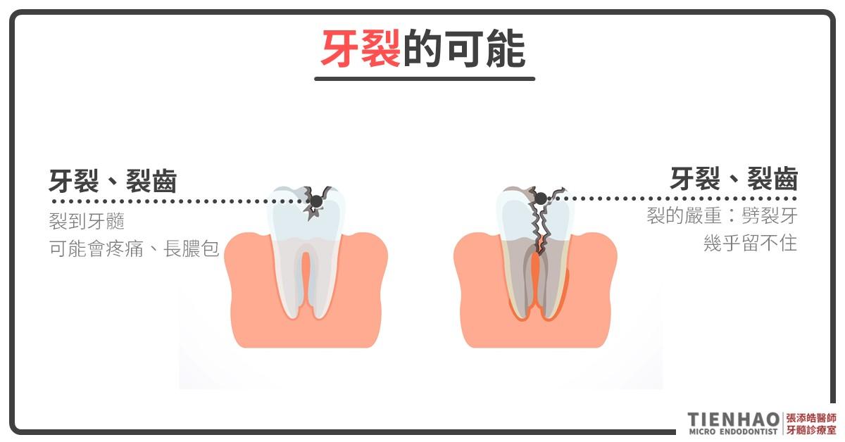 牙裂、裂齒