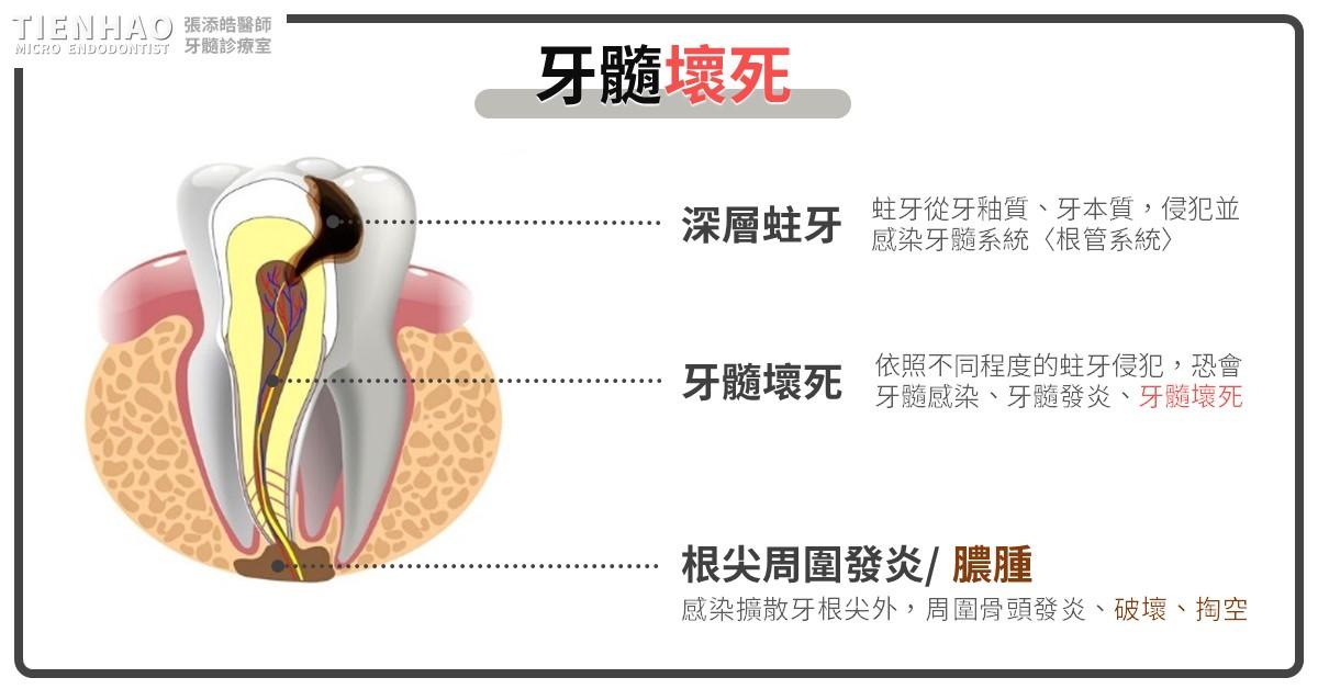 牙齒骨髓壞死其實是牙髓壞死